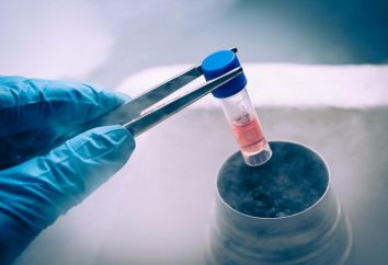 ¿Cómo es la criopreservación de espermatozoides