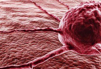 Objawy raka. Zwrócić uwagę! Pierwsze oznaki raka