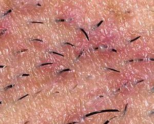 Co zrobić, jeśli po depilacji rosną włosy?