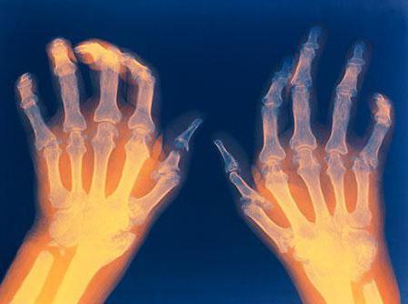Arthrose des Kniegelenks (Gonarthrose)