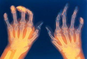 Artritis reumatoide: síntomas y el tratamiento de los recursos de drogas y populares