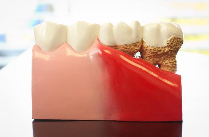 tabletten gegen parodontose