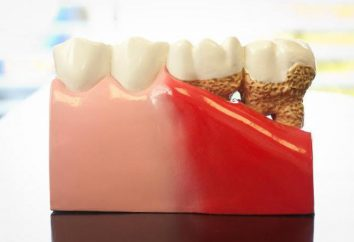 drogas eficazes para a doença periodontal e métodos de tratamento de doenças