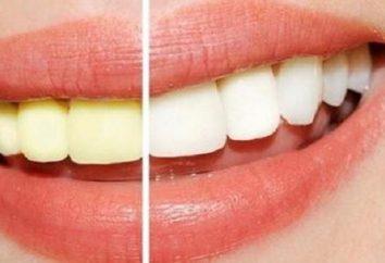 Najlepsze wybielanie zębów żele: opinie na temat producentów, rekomendacje aplikacji