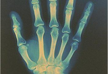 Sore Handgelenk: Ursachen, Symptome, Behandlung
