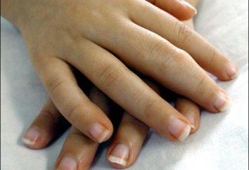 Przydatne informacje dla wszystkich: leczenie reumatoidalnego zapalenia stawów