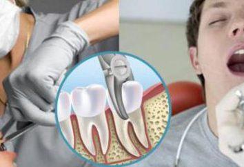 Nach dem Zahn zu entfernen, wenn Sie rauchen? Ist Rauchen Wasserpfeife nach Zahnextraktion? unmittelbar nach der Entfernung der Weisheitszähne unter Vollnarkose kann ich rauchen?