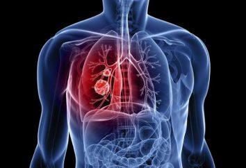 Płaskonabłonkowego raka płuca: opis, przyczyny, diagnostyka i leczenie funkcje
