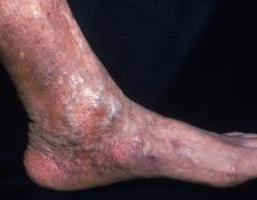 Zapalenie skóry na stopach