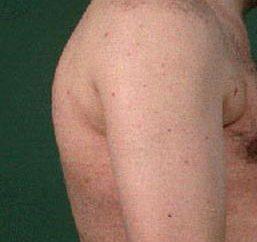 Brustwirbelsäule Chondrose: Ursachen, Symptome und Behandlung