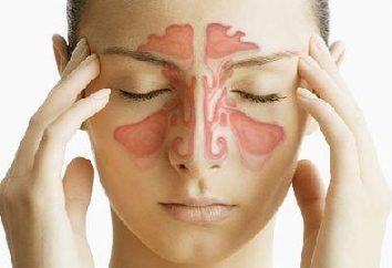 Você não quer ir ao médico? Top dicas sobre como tratar a sinusite em casa – para você!