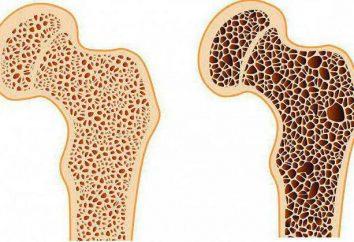 Hüfte Osteoporose: Symptome und Behandlung, Diagnose