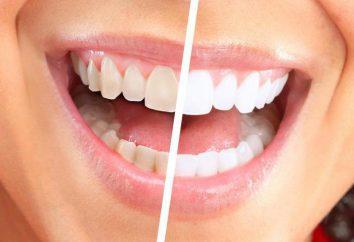 Blanchiment des dents Système mondial Blanc: avis. Global White: avantages et inconvénients