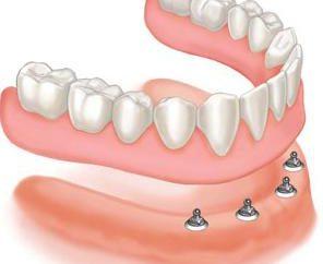 Dentier sans palais. Prendre soin de prothèses dentaires