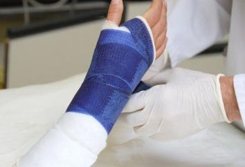 Richtig auferlegt langetka auf der Hand sorgt für die Heilung richtige Bruch