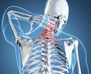 osteoartrite Unkovertebralny del rachide cervicale: cause e trattamento