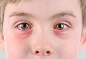 Viral cheratite: sintomi e trattamento