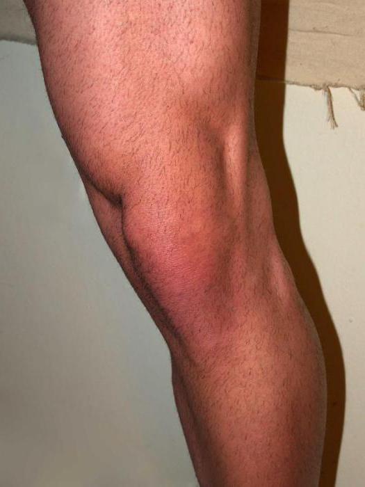 behandlung meniskusriss knie