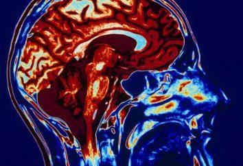 IRM du cerveau: la procédure a lieu? Comment se préparer à une IRM du cerveau?