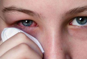 lesión en el ojo fuerte: ¿qué hacer?