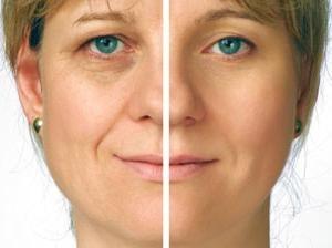 rajeunissement de la peau au laser
