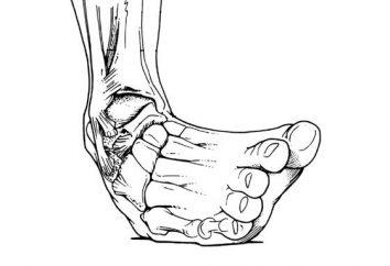 Jak traktować przemieszczone nogi w domu. Co zrobić ze zwichniętym nogą