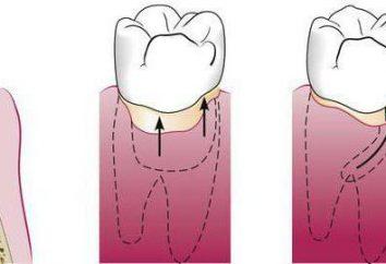 poches parodontales: l'inflammation et le traitement