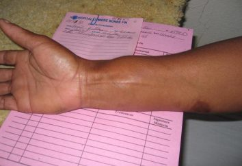 sarcoma sinoviale (synovioma maligno): cause, sintomi, trattamenti