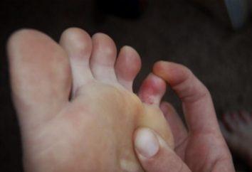 Złamanie małego palca na nodze: Pierwsza pomoc