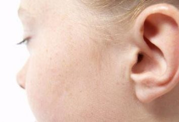 impactação de cerúmen na criança: sintomas, tratamento
