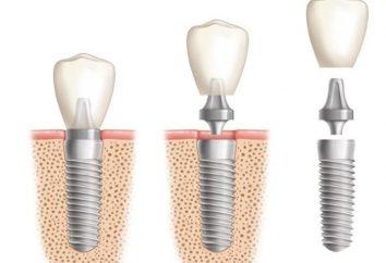 Invece protesico – una spina nel dente!