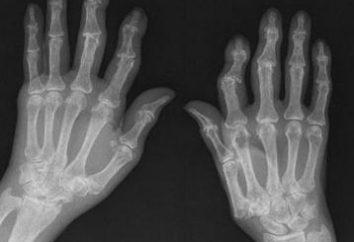 La osteoartritis de las manos: tratamiento, los síntomas y causas