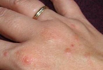 Brufoli sulle mani – le cause e trattamenti
