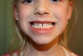 Se il dente è instabile nel sonno. Cosa significa sognare dente allentato