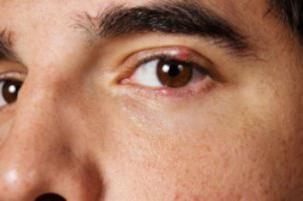 ¿Cuánto tiempo orzuelo. tratamiento de la cebada en medicina para los ojos