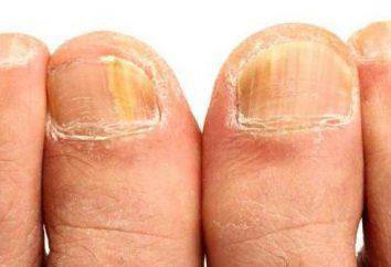 pédicure médicale avec mycose des ongles, Saint-Pétersbourg: adresses, commentaires