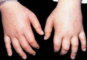 retenção de líquidos no corpo: causas, sintomas e recursos de tratamento