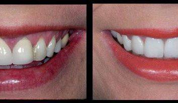 Keramische Kronen an den Vorderzähnen