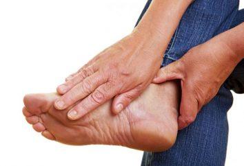 leczenie kości na nogę w domu. Wybrzuszenia kości na stopie: traktowanie jodem