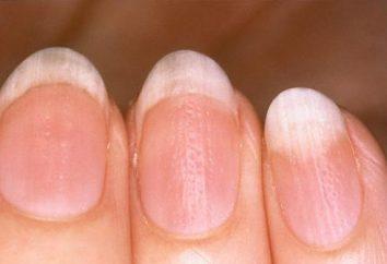 Ungleiche Nägel an den Händen: der Grund, die Behandlung