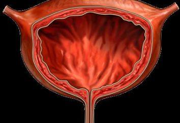 Cause, sintomi e trattamento della cistite emorragica