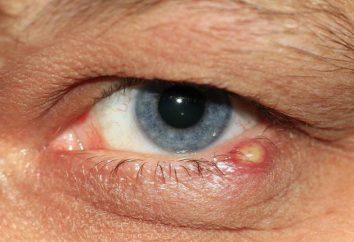 si la cebada es contagiosa en el ojo o no?