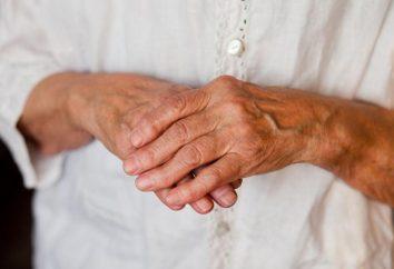 Bóle stawów rąk i stóp, co robić? Ból w stawach rąk i nóg: przyczyny i leczenie