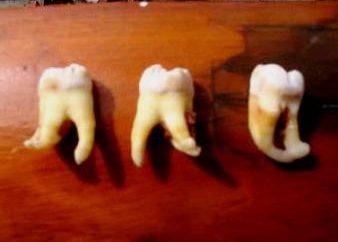 Ząb mądrości usunięte, ile to będzie bolało mu szczękę?