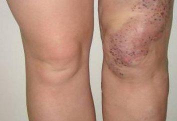 syndrome de Klippel-Trenaunay: photo, symptômes, traitement