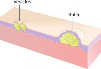 Vescicole – a … cause dei sintomi, la diagnosi, il trattamento