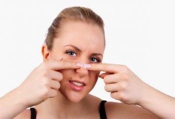 Jak wycisnąć czarne kropki na nosie w domu? Mogę wycisnąć czarne kropki na nosie?