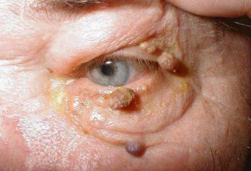 Tratamento de verrugas na intraductal corpo, genital