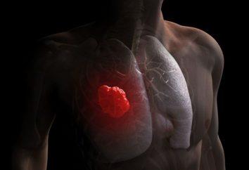 Como reconhecer o câncer de pulmão em estágio inicial: sintomas e causas de