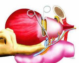 La cistectomia è ciò che è